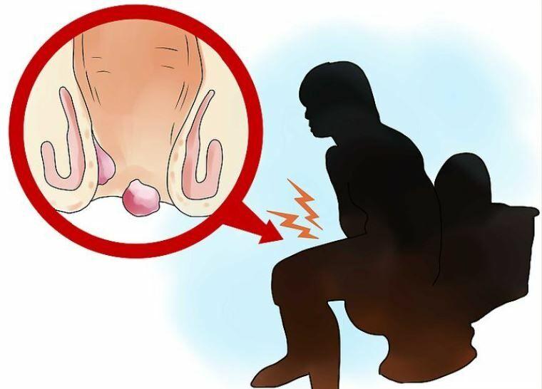 Aranyér kezelése terhesség alatt és szülés után