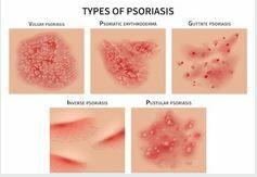Psoriasis típusai